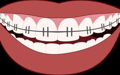 Comment améliorer la dentition d'un enfant?