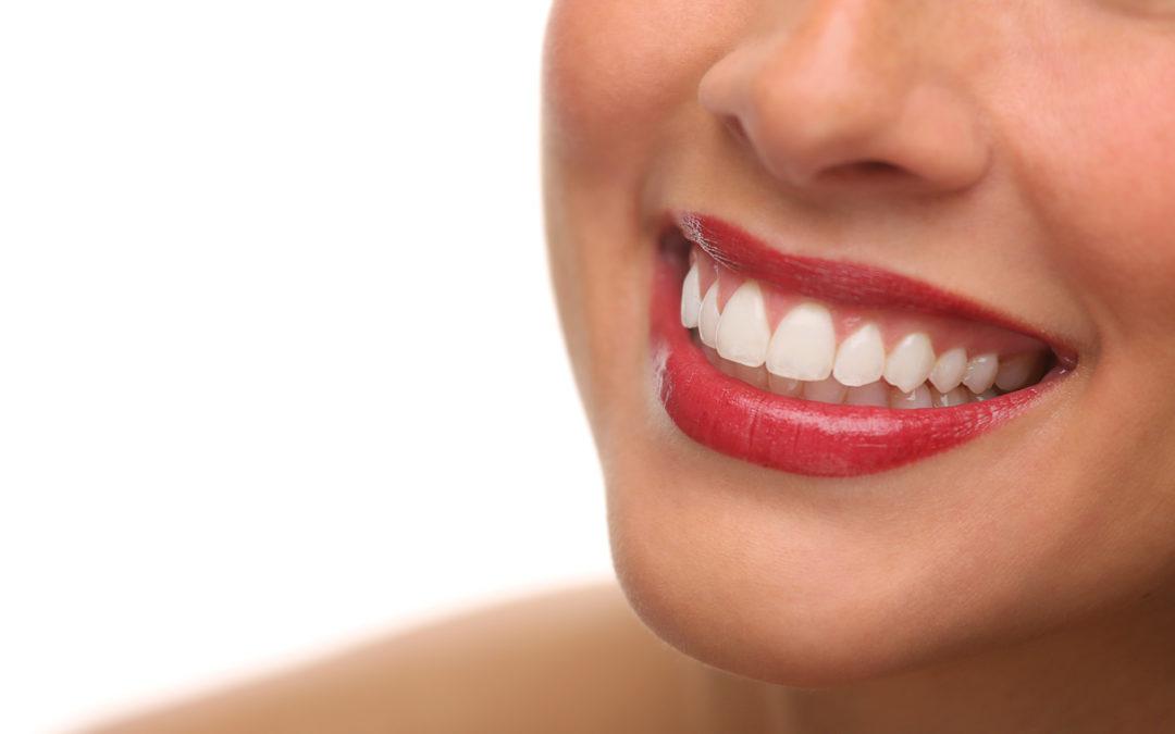 Comment avoir un beau sourire.